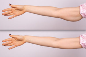 xiluet-plastic-surgery-arm-lift-surgery-miami-3-600x400