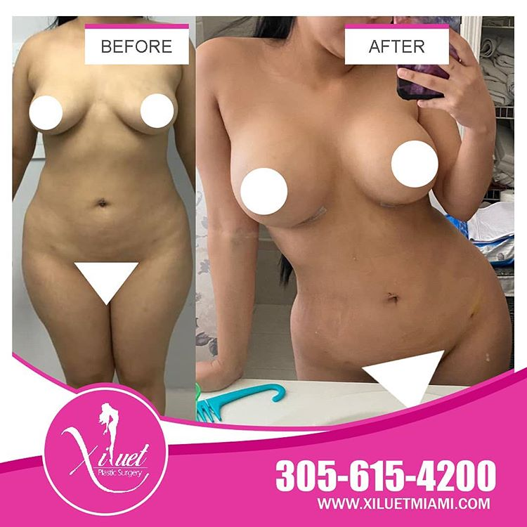 Lipo and Breast Augmentation